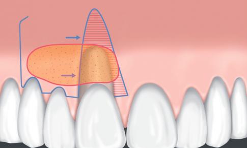 Regeneración de tejido blando en una clase 3 mediante un colgajo desplazado lateral e injerto de tejido